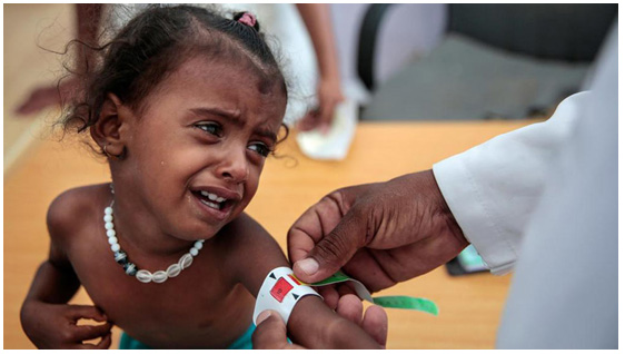85,000 Children Have Starved to Death in Yemen